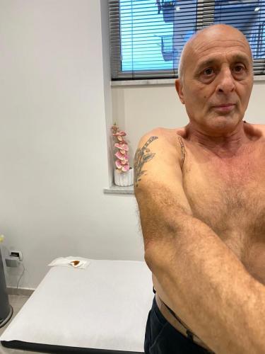Paziente operato di protesi di spalla che articola completamente dopo 14 giorni